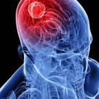 Beyin Tömürleri Doç. Dr. Mehmet Şenoğlu Yazdı