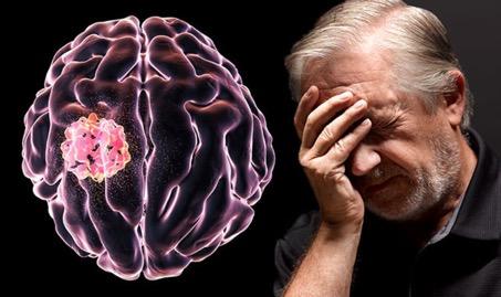 Beyin Tümörü BelirtileriNelerdir?