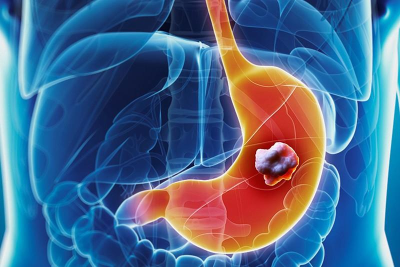 Aile de mide kanseri varsa bu risk oluştururmu?